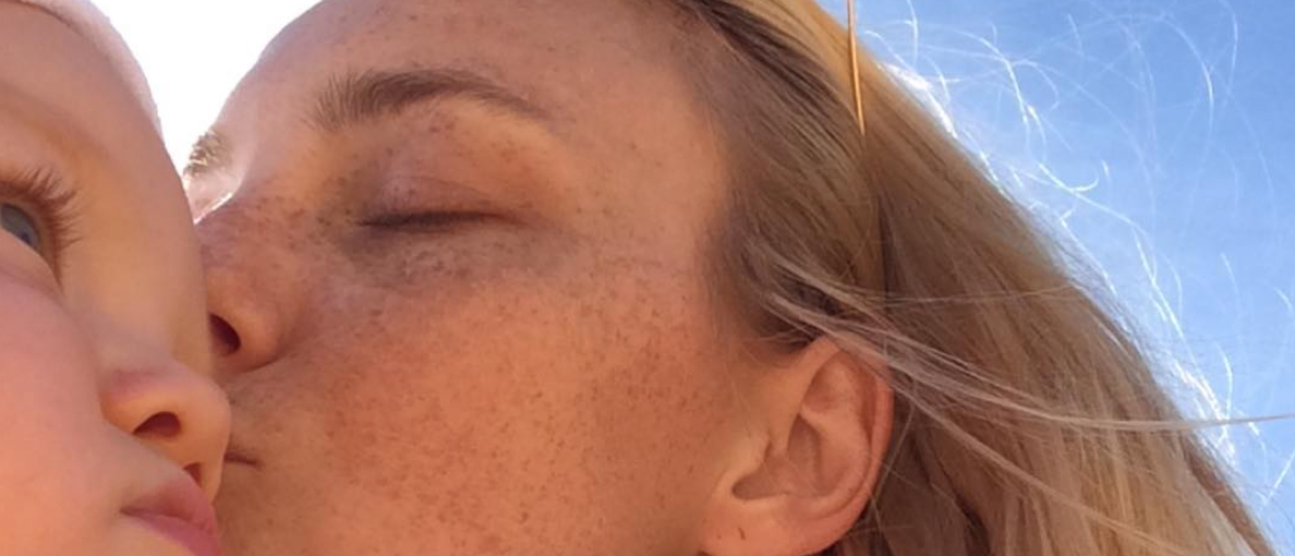 The Lowdown On Pigmentation, And How To Finally Get Rid Of It
