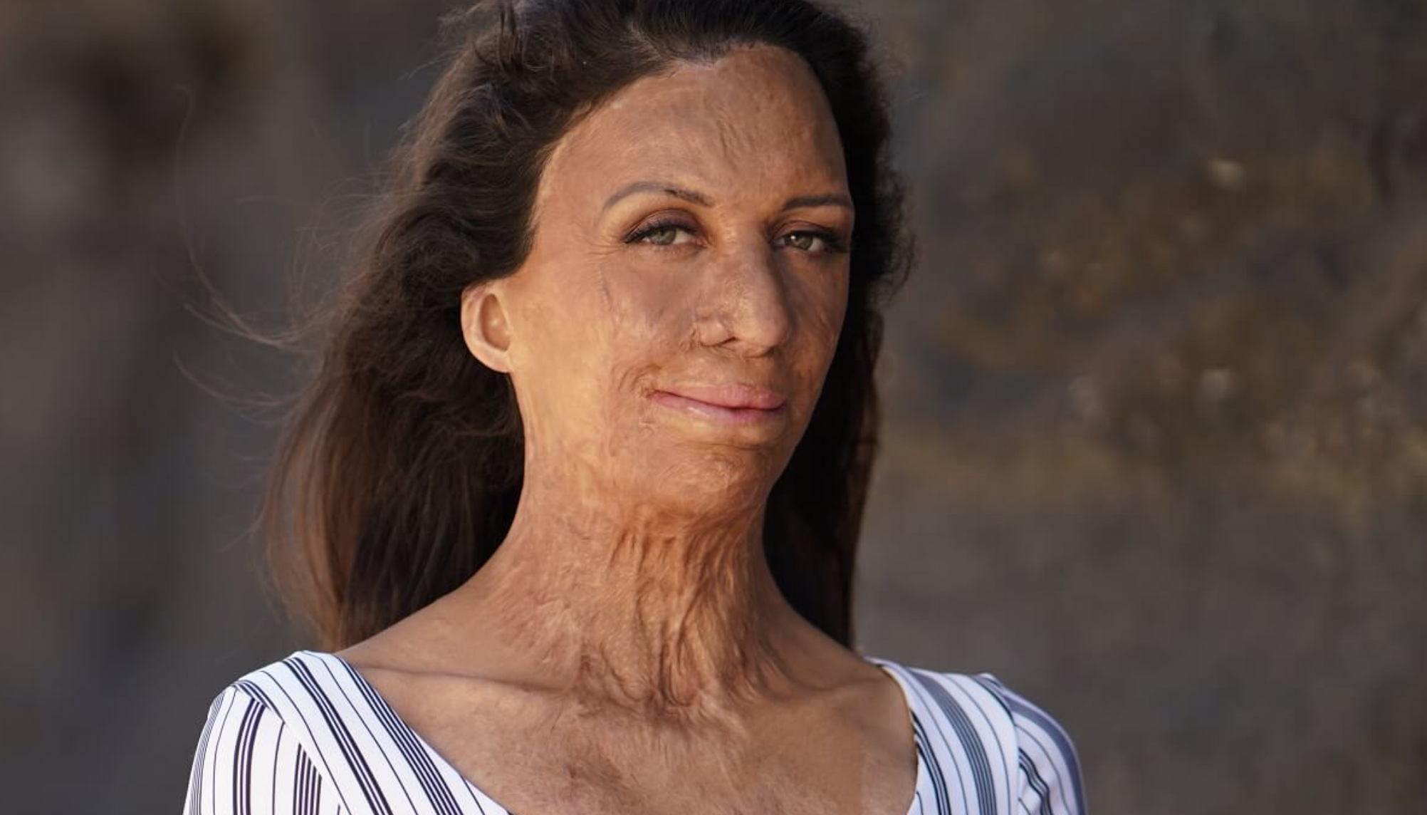 Turia Pitt on Happiness And Overcoming Adversity – Episode 29 of The Grace Tales Podcast